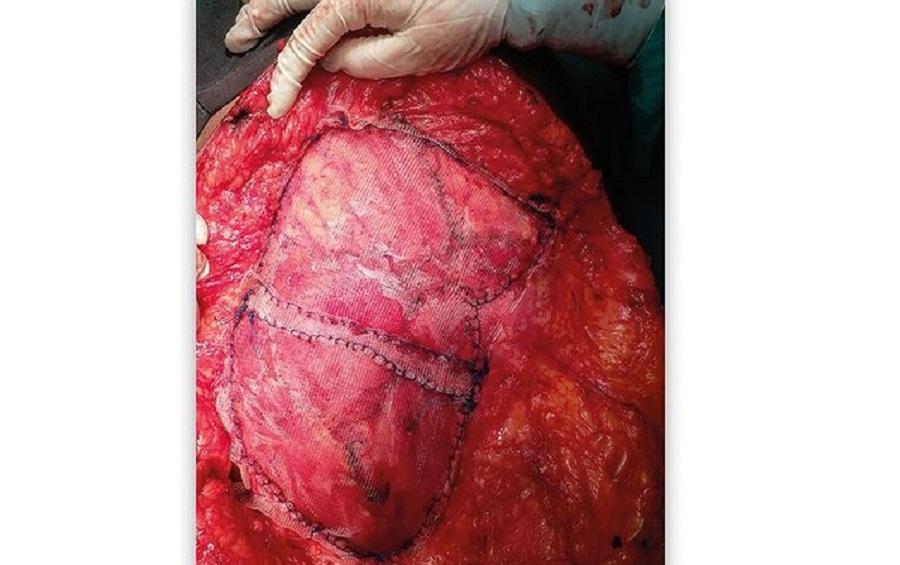 https://www.paramounthospital.in/repair-of-incisional-hernia/