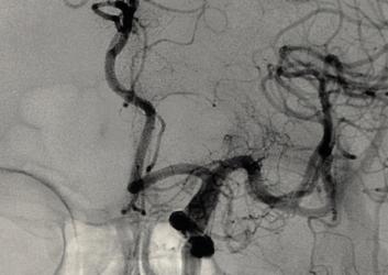 https://www.paramounthospital.in/best-neurology-hospital-in-siliguri/
